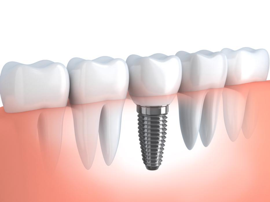 Dental Implants | Edina MN