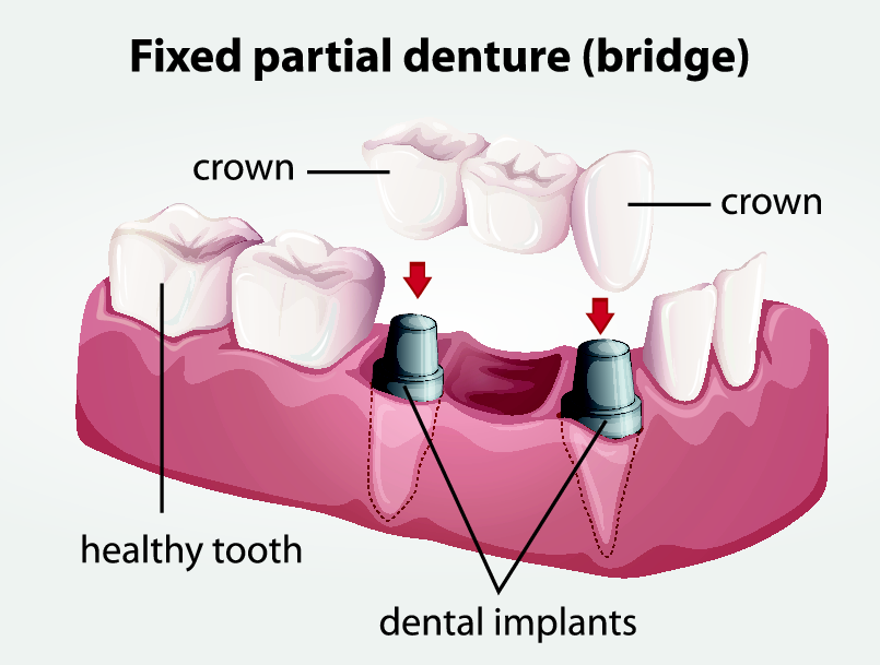 Dental bridge diagram | Edina mn dentist