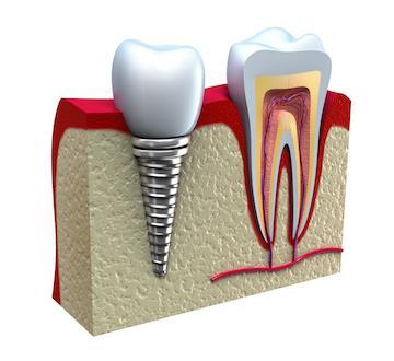 Diagram of a dental implant | Dental Implants in Edina, MN