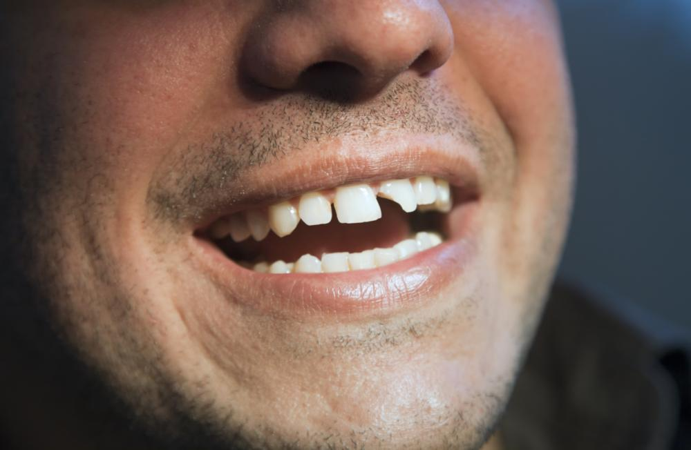 Man smiling with gaps in front teeth | Dentist Edina MN