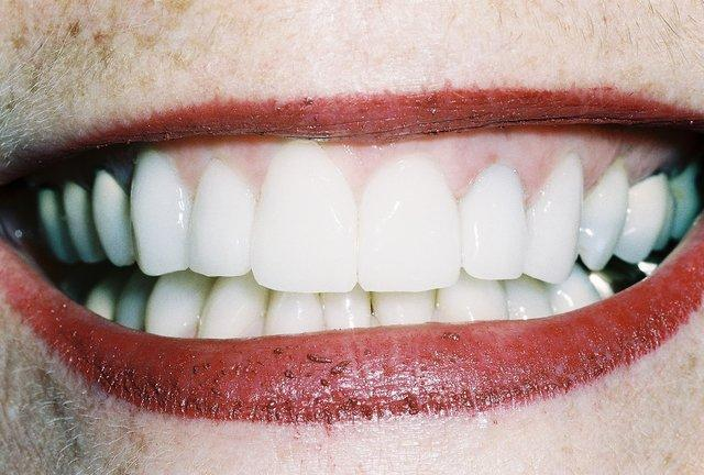 Close up of front teeth after veneers