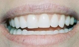 Image of same teeth after cosmetic dentistry