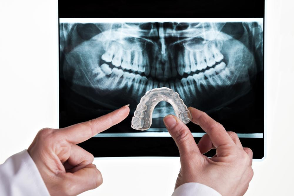 A dentist holds an occlusal guard in front of an x ray | occlusal guards Edina MN
