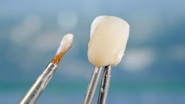 An image of a dental crown or a veneer being made | Veneers Edina MN
