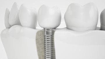 dental implants edina