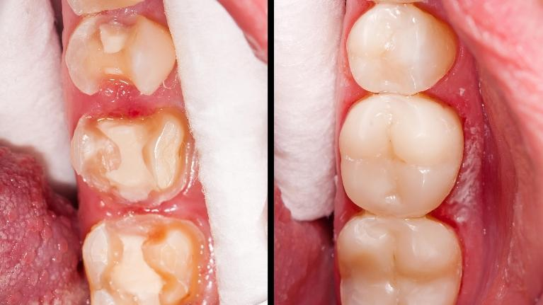 image of before and after dental crowns are placed in edina mn