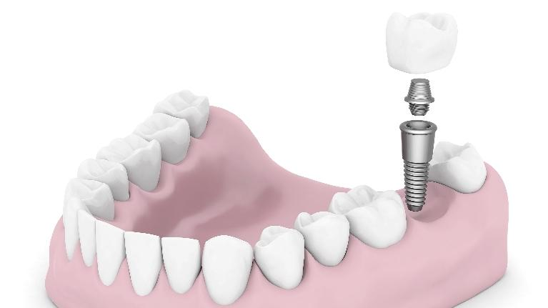 Dentures to Dental Implants | Dentist in Edina, MN