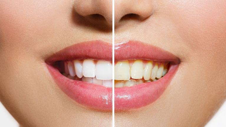 a closeup before and after picture of a smile makeover | Edina mn cosmetic dentist