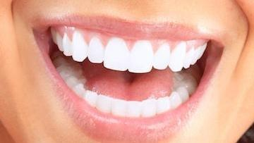 a close up image of a smile | edina MN dentist