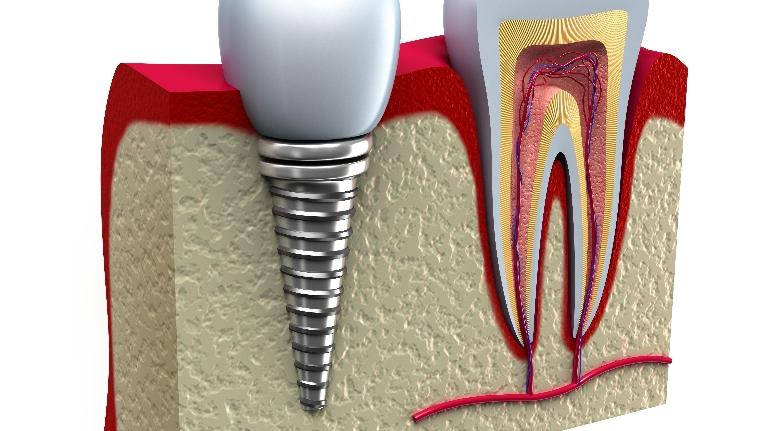 Dental Implants vs Bridges | Edina MN Dentist