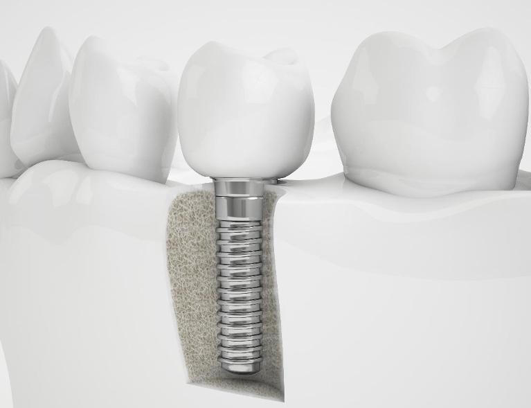 Dental Implants in Edina MN