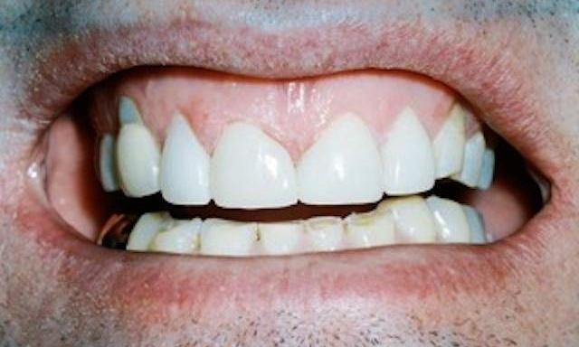 image of same teeth fixed with composite bonding | edina mn