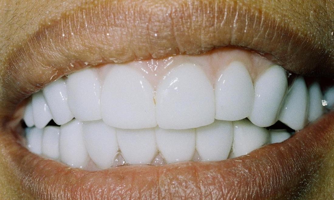 image of same teeth with all porcelain crowns and healthy gums