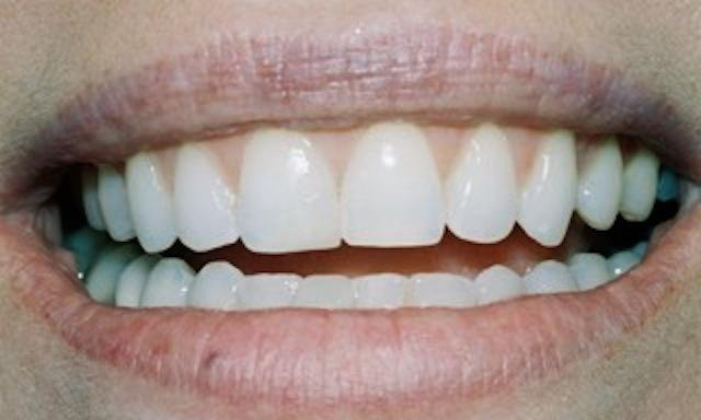 image of same teeth after smile makeover | composite bonding edina mn