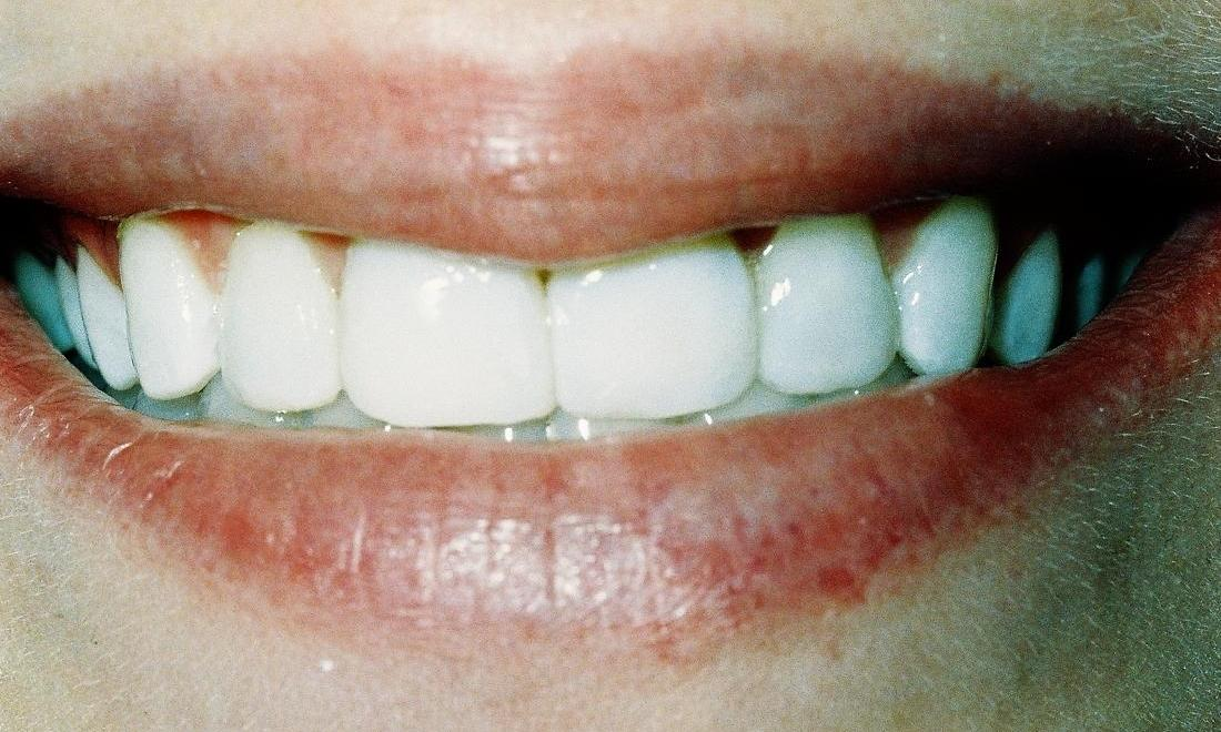 image of same teeth lengthened with veneers and composite bonding