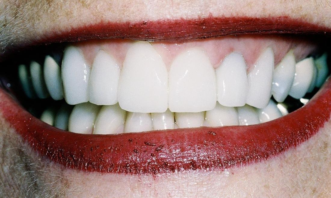 image of same teeth after straightening, crowns, and veneers