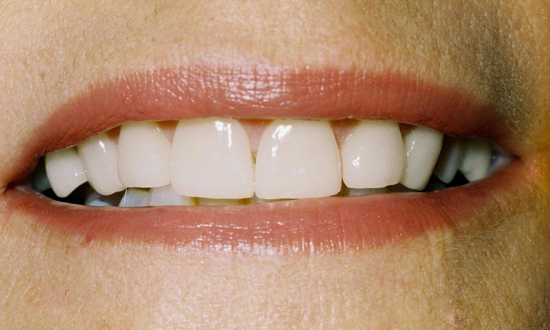 image of same teeth with veneers