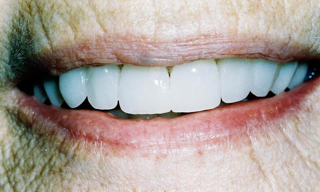 image of the same teeth but brighter and whiter thanks to veneers
