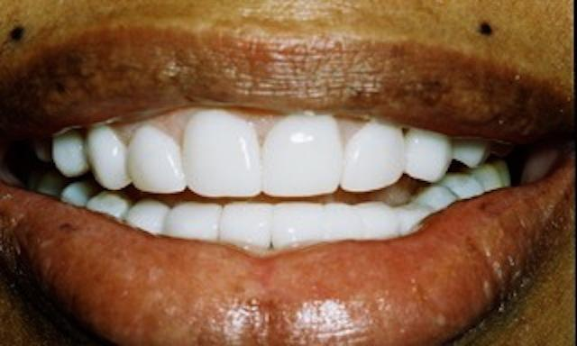 image of same teeth fixed with veneers | edina mn