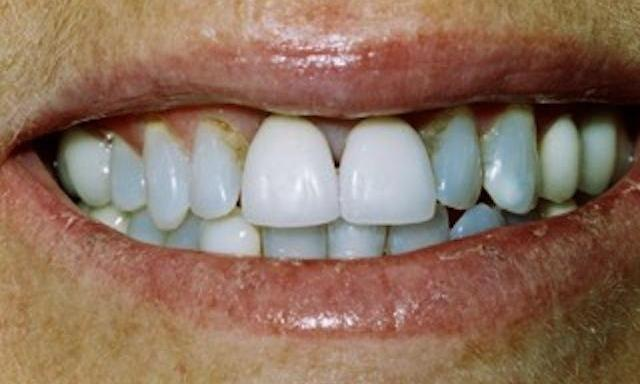 image of front four teeth with discoloration and improper shape