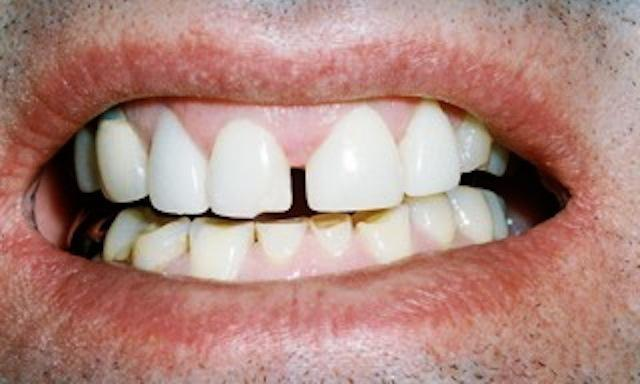 image of teeth with large space