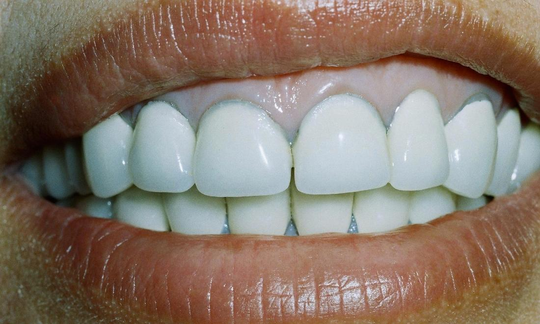 image of old crowns with a blue discoloration and inflamed gums