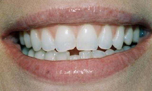 Image of chipped teeth