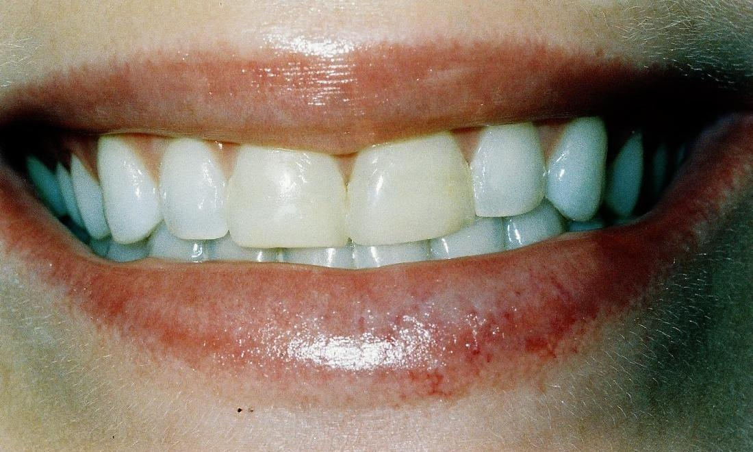 image of short and dark teeth