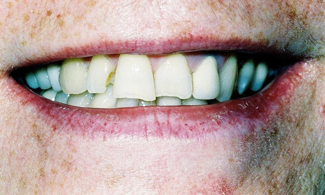 image of chipped and crooked teeth