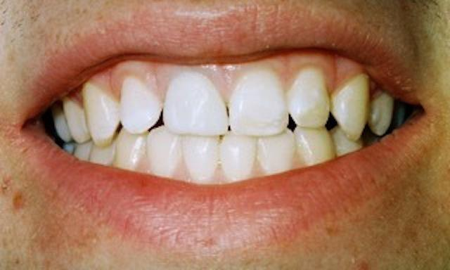 image of teeth with undesirable color and shape