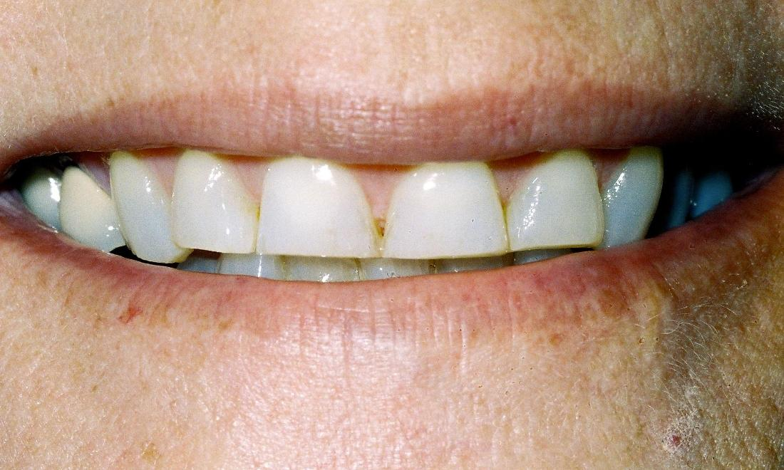 image of teeth in poor positions | edina mn