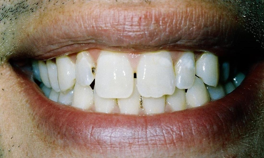 image of teeth with decay and in poor positions