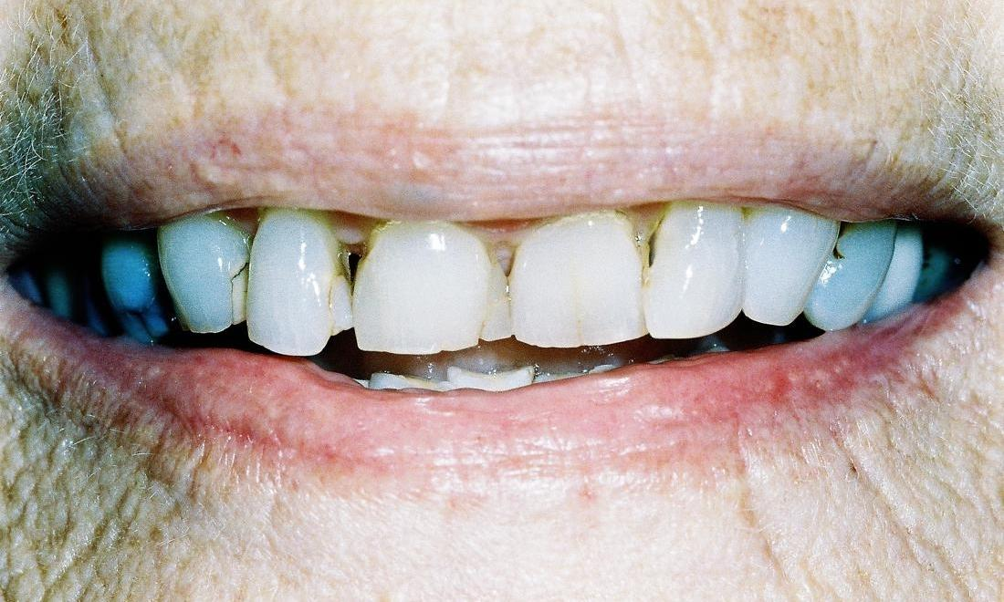 image of teeth with stains, wear, and chips