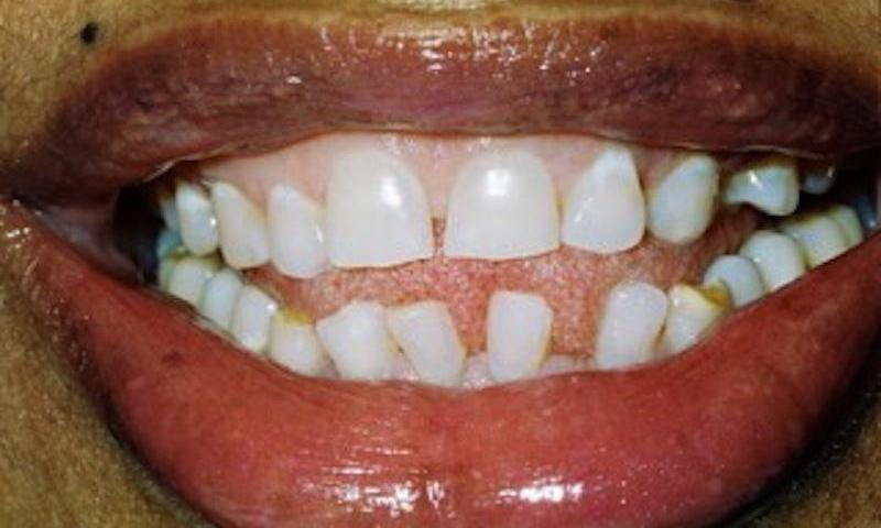 image of teeth with spaces between them