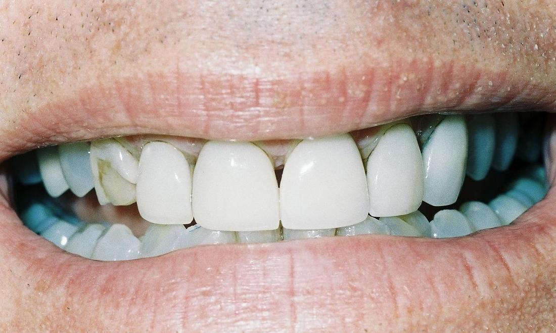 image of broken and stained teeth
