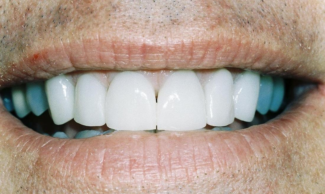 image of same teeth fixed and lightened with veneers