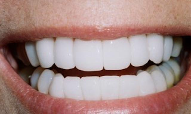 Cosmetic-Dentistry-Success-After-Image