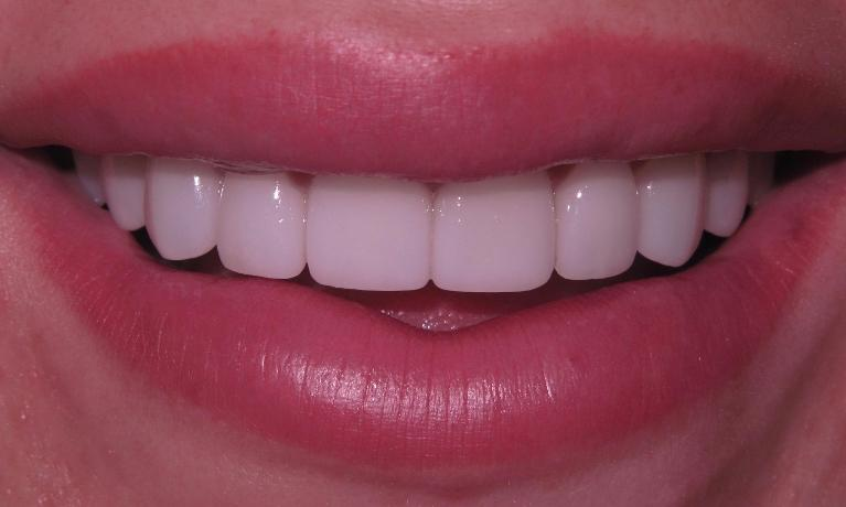 Veneers-make-a-big-smile-After-Image