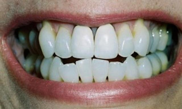 Cosmetic-Dentistry-Success-Before-Image