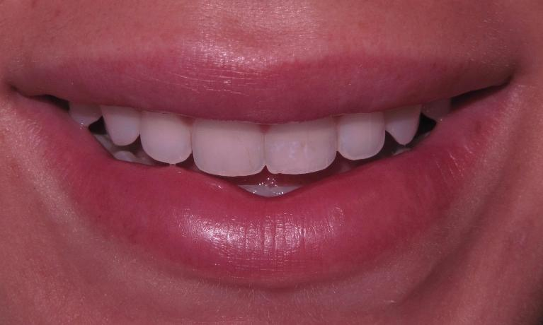 Veneers-make-a-big-smile-Before-Image