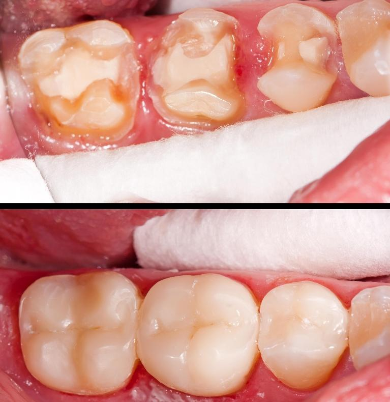 image of tooth colored composite fillings