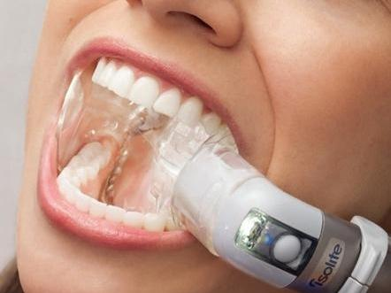 image of a dental lighting system that illuminates the inside of your mouth during procedures